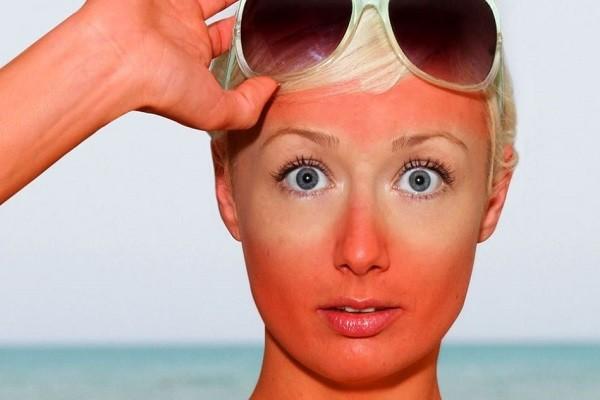 Bikin Masker Lidah Buaya untuk Kulit yang Terbakar Matahari