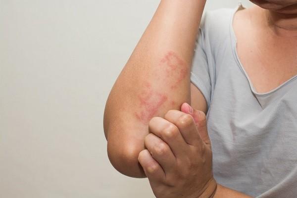 Meningkatkan Resiko Alergi Pada Tubuh Manusia Terhadap Makanan