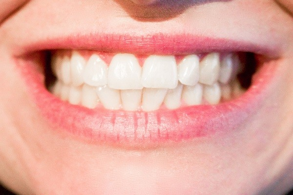 Tak Perlu Bantuan Dokter, Apple Cider Vinegar Bantu Putihkan Gigi dan Bersihkan Karang Gigi